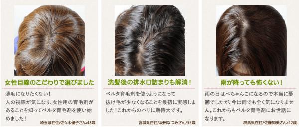 女性 薄毛 育毛剤 お試し 改善