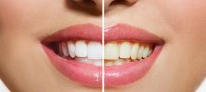 産後 歯 黄ばみ 取り方 落とす方法
