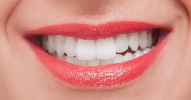 歯 黄ばみ 取れない 落とし方