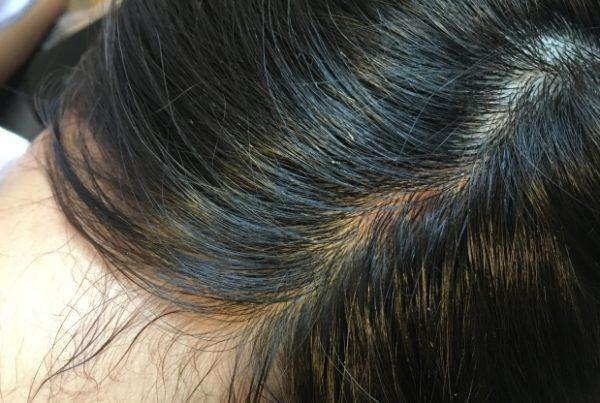 いち髪 頭皮 かゆい 臭い 乾燥